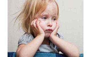 Как предотвратить возникновение осложнений от ветрянки у детей