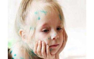Как и чем эффективно лечить ветрянку у детей?